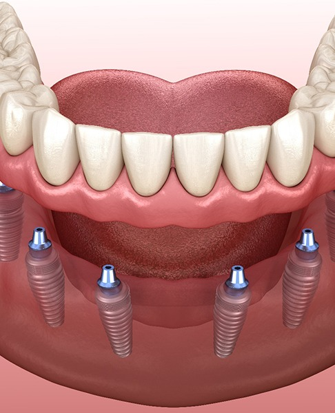 Illustration of implant denture supported by six implants