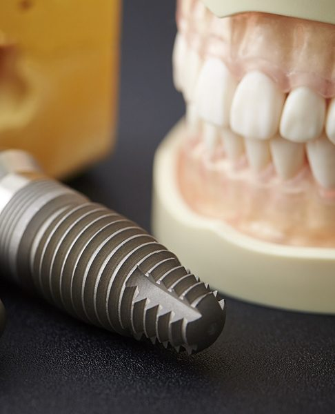 Close-up of dental implants next to dental model