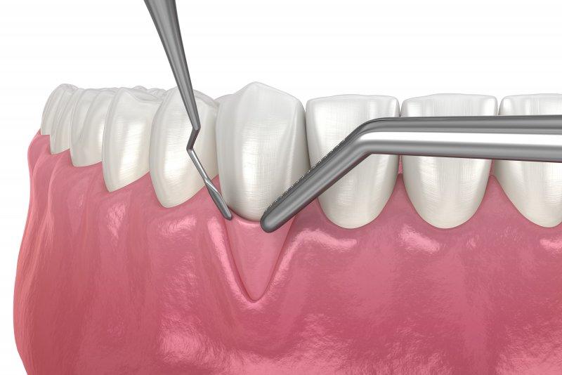 Computer illustration of a gum grafting procedure